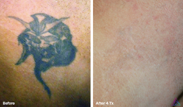 Before and After Pictures | St. Pete Tattoo Removal | St. Pete ...