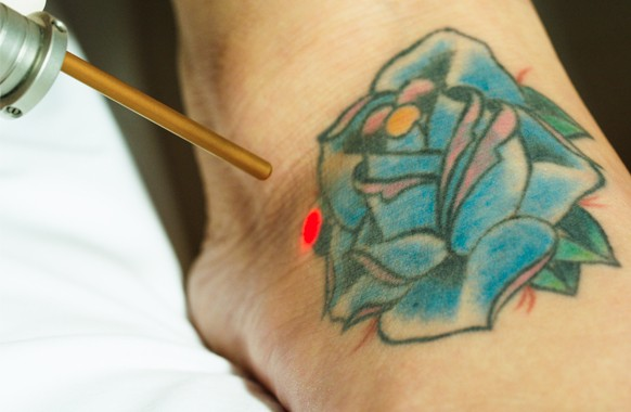 St. Pete Tattoo Removal | Florida Laser Tattoo Removal