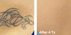 Tattoo Removal Picture 5
